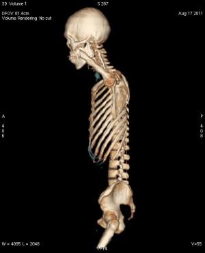 全身CT骨3D