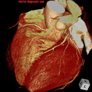 心臓CT画像