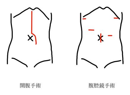 図3 胃がん手術における開腹と腹腔鏡の傷の違い