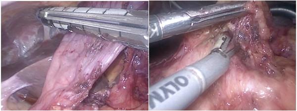 図4 腹腔鏡下胃切除術