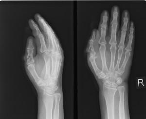 親指の骨折