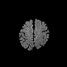 正常の頭頂部MRI-Dffusion画像