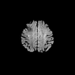 脳梗塞のMRI画像