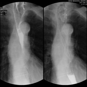 食道癌の透視画像