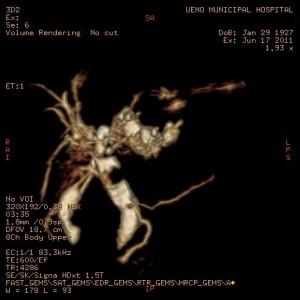 総胆管結石の3D-MRI画像